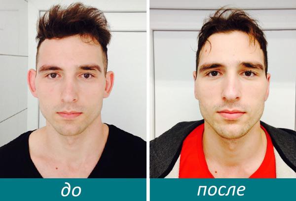пластика ушей фото до и после
